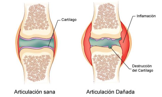 Beneficios del omega 3 para la artritis